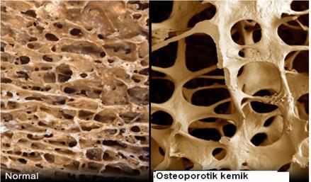 kortikosteroidna krema-nuspojave