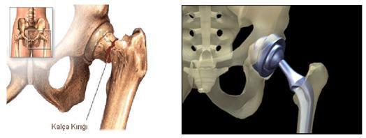 Osteoporoz tanı ve tedavisi ile ilgili görsel sonucu