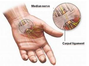 carpal_tunnel_syndrome_2