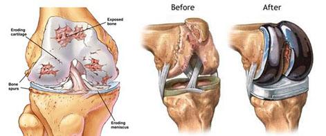 cartilage_1