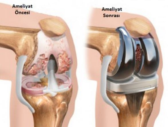 knee prothesis Prosthesis: prosthesis one type of below-knee prosthesis is made from plastic and fits the below-knee stump with total contact.