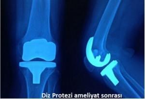 Knee_Prosthesis_4