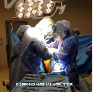 Nasıl Bir Ameliyat süreci geçiyor