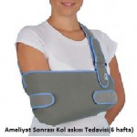 shoulder_dislocation_7
