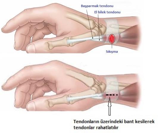 De Quervan Hastalığı (Tenosinoviti)