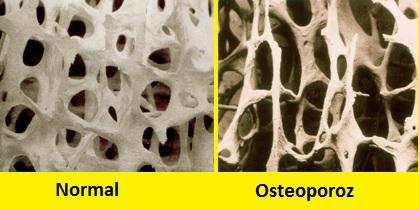 Gençlerde Görülen Osteoporoz ( Premenapozal Osteoporoz )