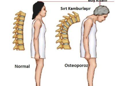 Postmenapozal Osteoporoz (Menapozdan Sonra Görülen Osteoporoz)