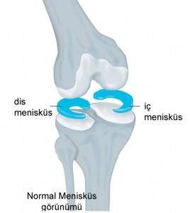 cocuklarda_meniskus_1