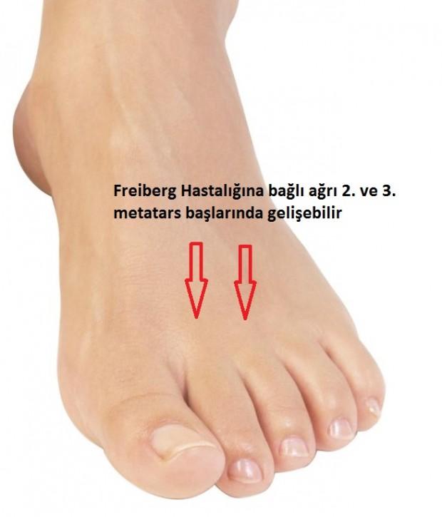 Freiberg Hastalığı