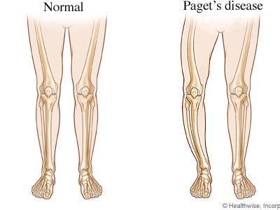 Paget Hastalığı (Osteitis Deformans)