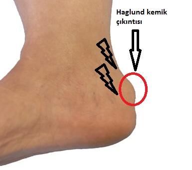 Haglund Hastalığı ( Retrokalkaneal Bursit)