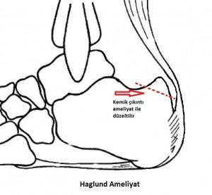 haglund 5