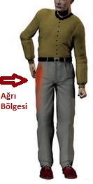 trokanterik-bursit-resim-2